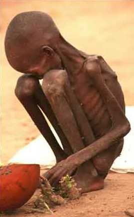 starving-child-sudan21